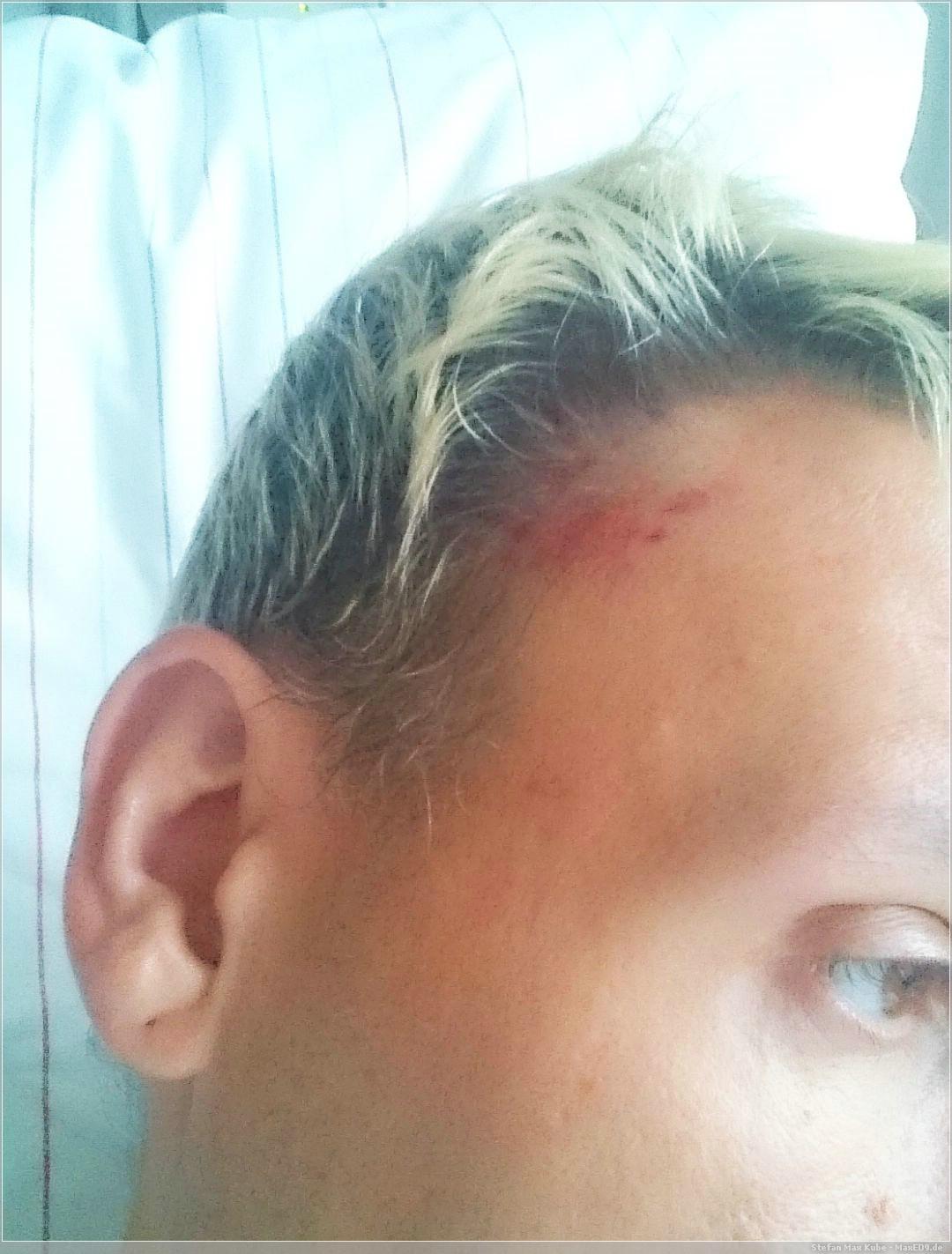 Kratzer am Kopf vom Helm